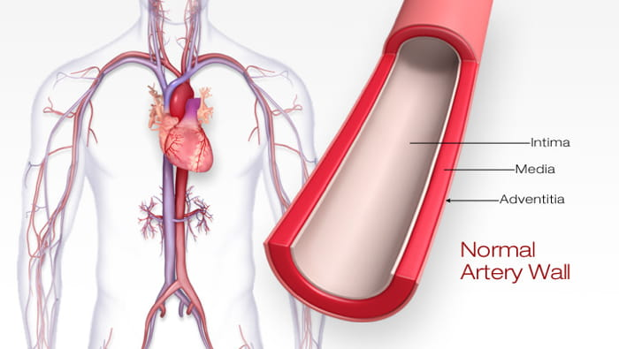 atherosclerosis and stroke american stroke association Effects of Atherosclerosis Heart Disease atherosclerosis \u2014 often called hardening of the arteries \u2014 is the buildup of fatty substances in the arteries, which can lead to heart disease and stroke