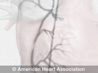 angiogram illustration