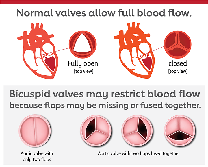 bicuspid valves may restrict blood flow