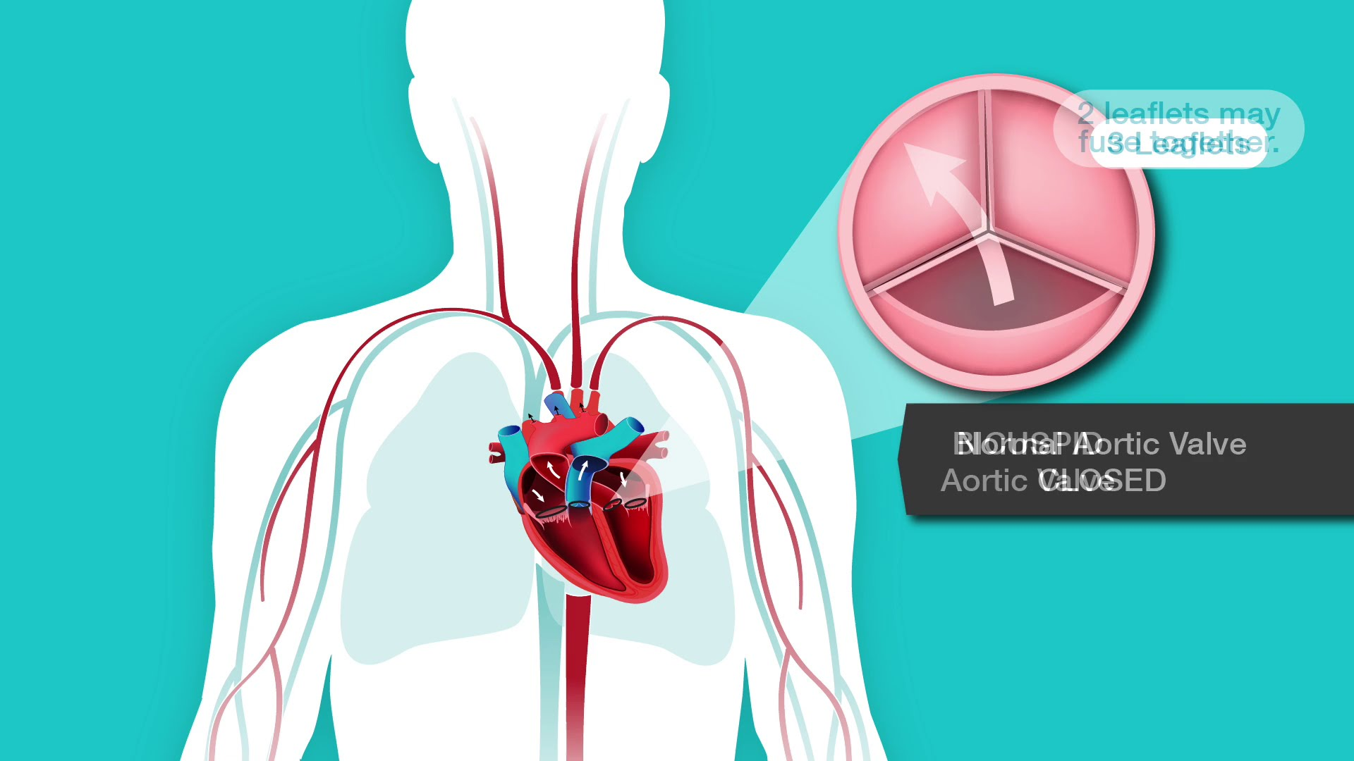 Aortic Stenosis Overview   American Stroke Association