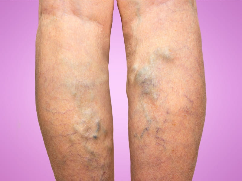 Legs with varicose veins. (Marina113/Getty Images)