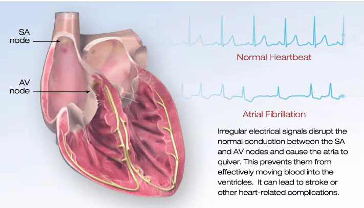 What is AFib?