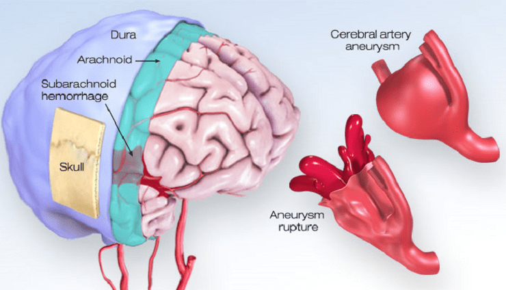 What You Should Know About Cerebral Aneurysms | American