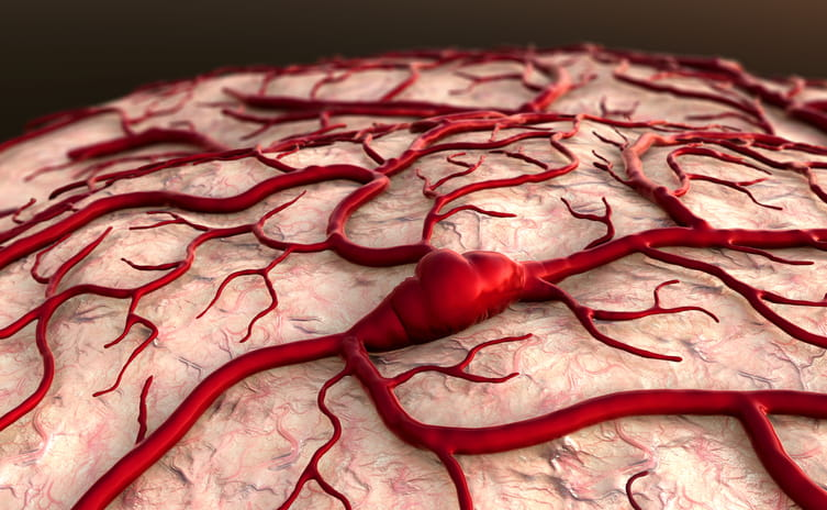 What is an Arteriovenous Malformation | American Stroke ...