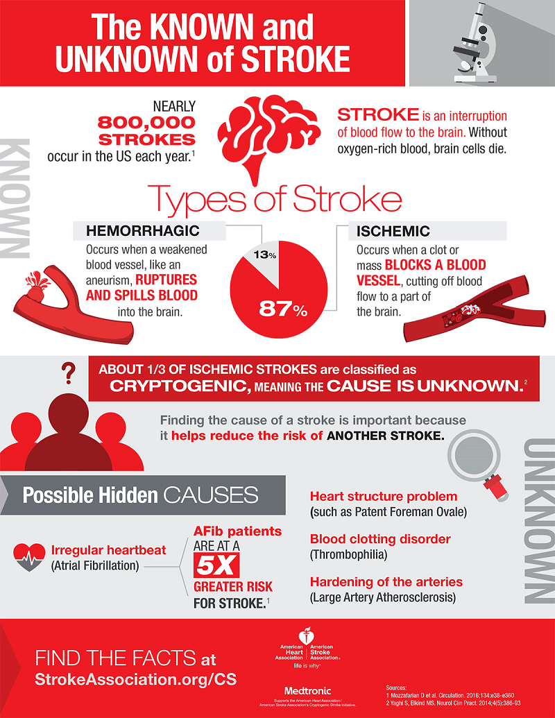 What causes Cryptogenic Stroke
